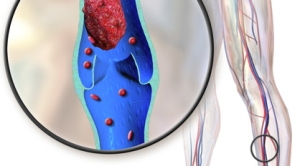 DVT or Deep Vein Thrombosis is the formation of a post-surgery blood clot
